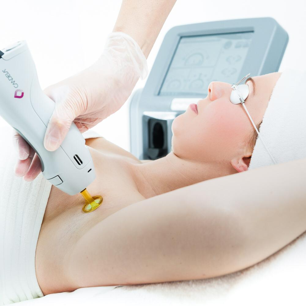 FOTO B Lasertherapie